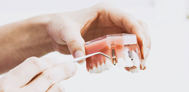 Hands holding an acrylic model of an arch of teeth using a dental implement to highlight a dental implant fixture
